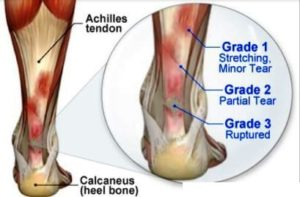 Your Achilles Heel: Tendonitis Prevention and Management